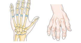 naturmedel artros
